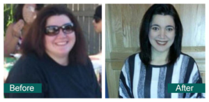 Before After Weight Loss Andrea